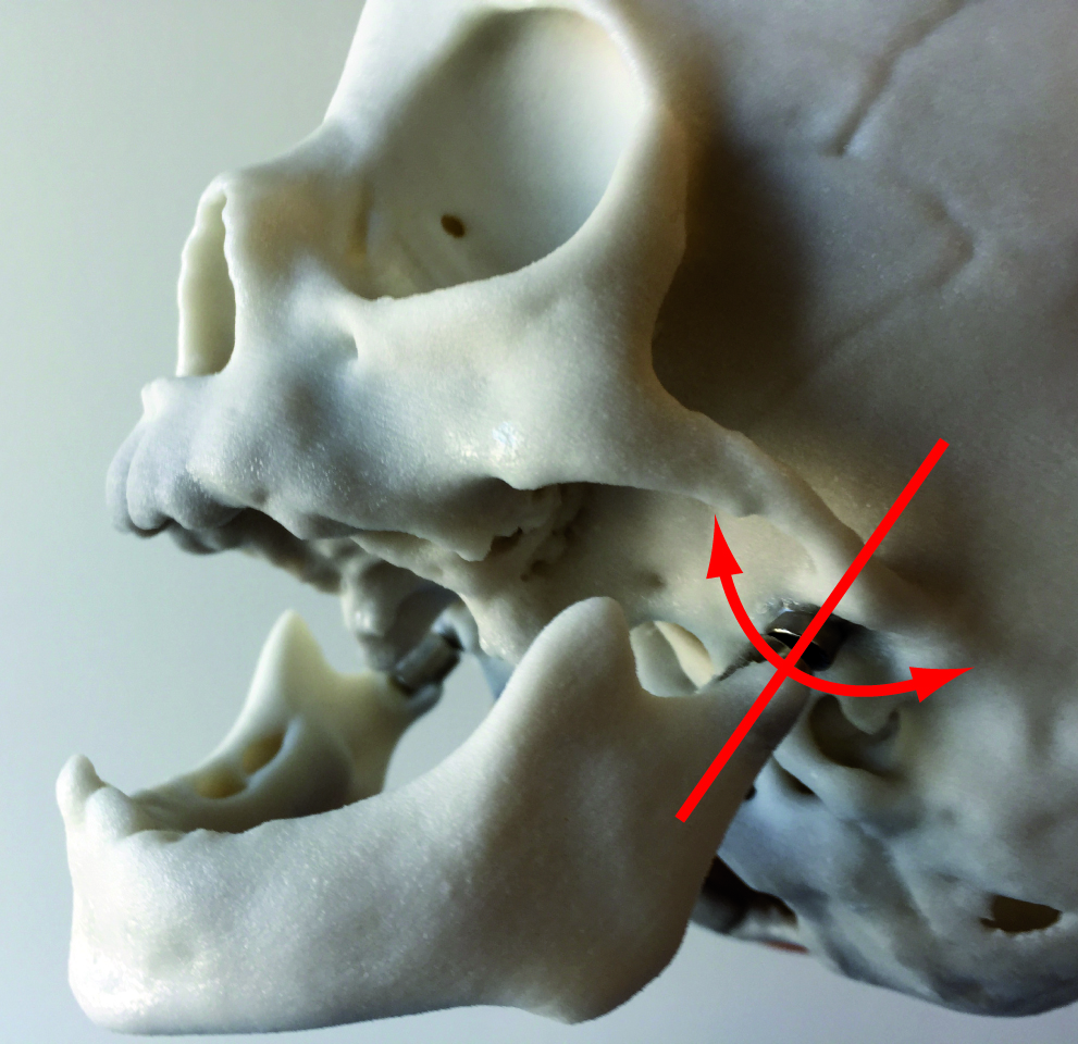 Boneplan infant skull with jaw