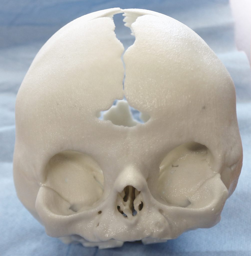 Boneplan Infant Skull OP-Model